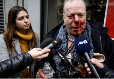 Θύμα άγριου ξυλοδαρμού ο δημοσιογράφος Θωμάς Ιακόμπι